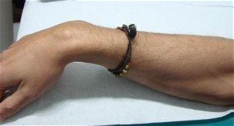 dolore al gomito parte interna tendiniti dell arto superiore braccia e cisti