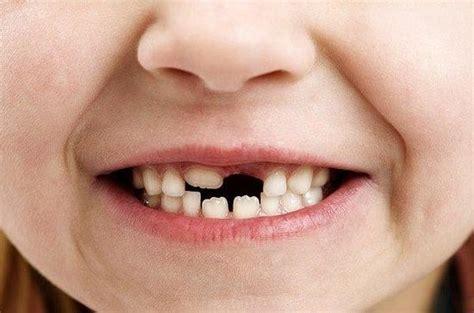 losing teeth of losing teeth meanings teeth falling out interpretation