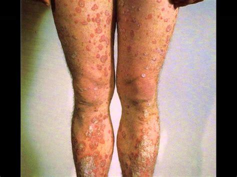 en la piel de psoriasis enfermedades de la piel youtube
