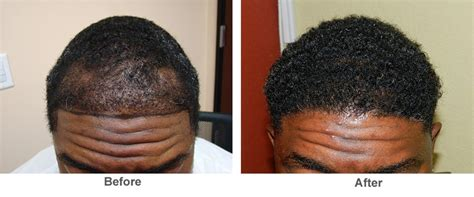 hairline restoration for black san francisco hair transplant restoration san jose bay area
