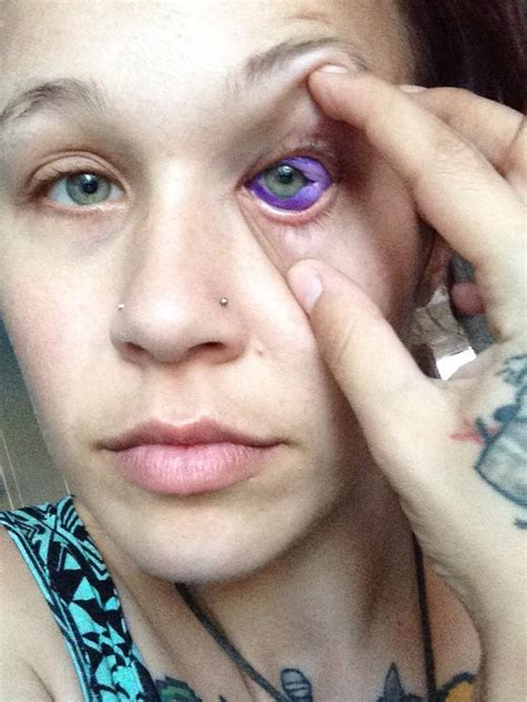 eyeball tattoo gone wrong canadian could go blind after getting eyeball