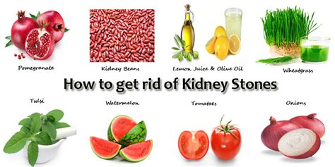 home remedies for kidney stones in ayurveda care well