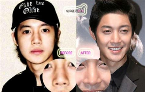 Plastik Sah Medis 10 Aktor Korea Sebelum Dan Sesudah Operasi Plastik