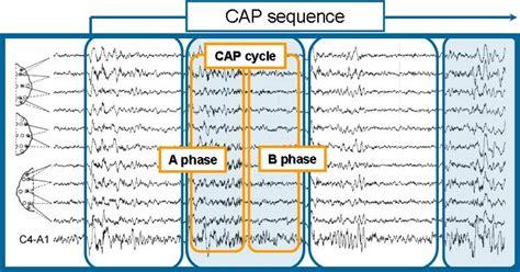 cyclic pattern definition the cap sleep database