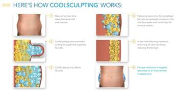 coolsculpting at home coolsculpting huntsville contouring guntersville al