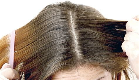 dolor de cuero cabelludo exfoliaci 243 n capilar para combatir problemas de caspa o grasa