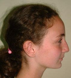 what is a convex hair cut 1000 images about convex profile on pinterest bangs