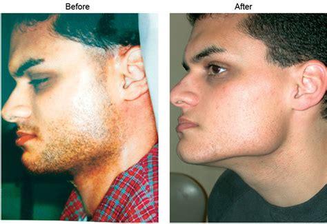 lotus beverly hills skin center laser hair removal los angeles laser hair removal laser hair removal beverly