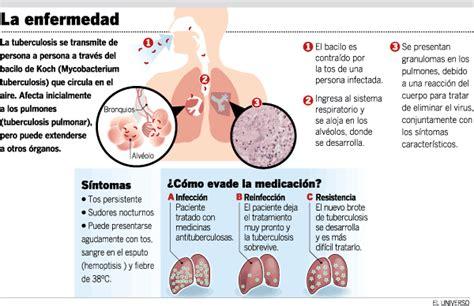 cadena epidemiologica treponema pallidum tuberculosis un problema grave de salud publica