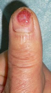 nail bed pain overview of wound healing in a moist environment