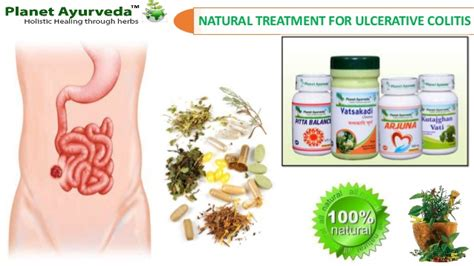 treatment for ulcerative colitis best herbal