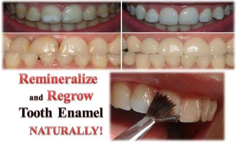 How to Remineralize and Regrow Tooth Enamel NATURALLY!