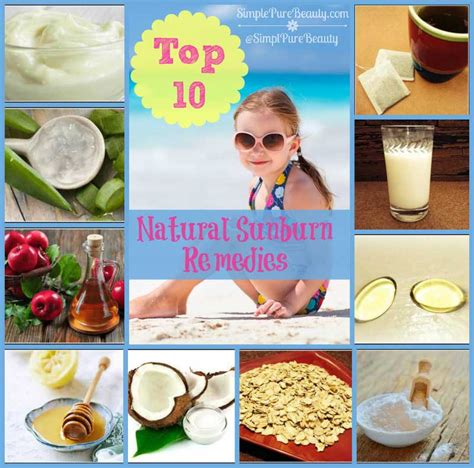 top 10 home remedies for sunburn itch and