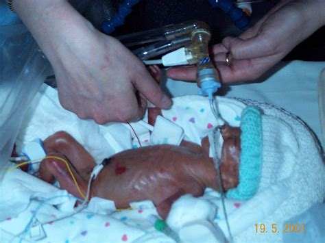 Bayi Prematur Abortion Drclintonb Page 2