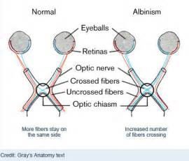 Color Blindness X Linked Geneticmutationruebe7 Albinism