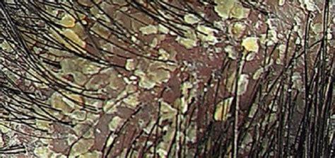 como combatir la dermatitis seborreica en el cuero cabelludo dermatitis seborreica ca 237 da cabello alopecia calvicie
