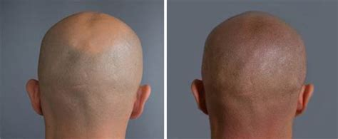 how to cure baldness with a 163 3 000 hair tattoo style