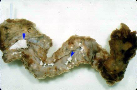 Green Stools Pancreatic Cancer by Chronic Pancreatitis