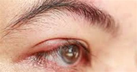 Obat Mata Bintitan Pada Anak Balita 10 cara cepat mengatasi mata bintitan dengan alami dan