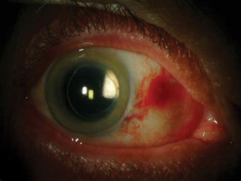 cataract surgery review of cornea and contact lenses gt the cataract patient is a eye patient