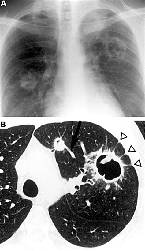 Wedges Adl 912 Wedges Ct imaging of the pulmonary manifestations of systemic disease postgraduate journal