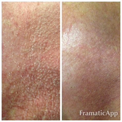 Gilette Invests In Home Laser Hair Removal Research by Electrolysis Frequently Asked Questions And Answers