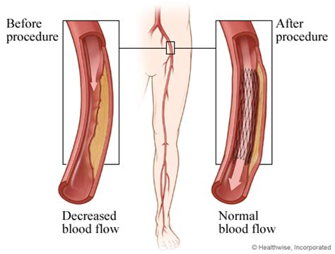 blocked arteries and open surgery angioplasty for peripheral arterial disease of the legs