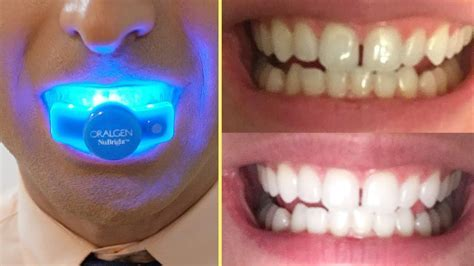 How to INSTANTLY WHITEN YOUR TEETH at Home (BEST IN HOME