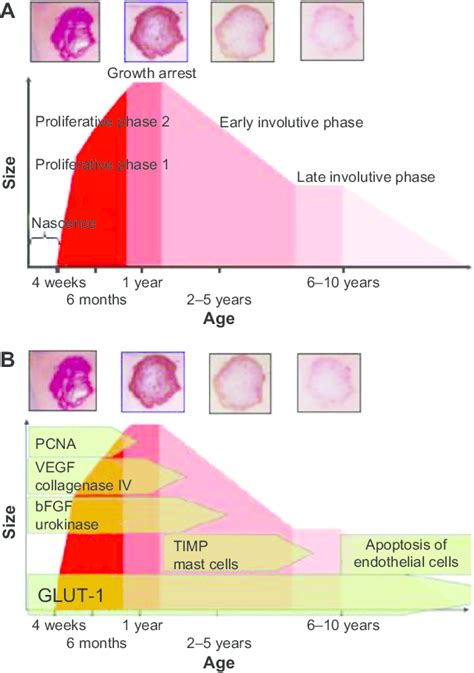 growth pattern classification schematic growth and regression curve of hemangioma of