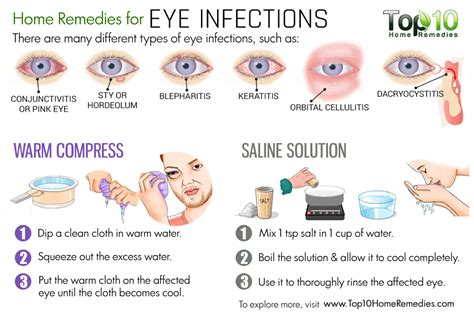 home remedies for eye infections top 10 home remedies