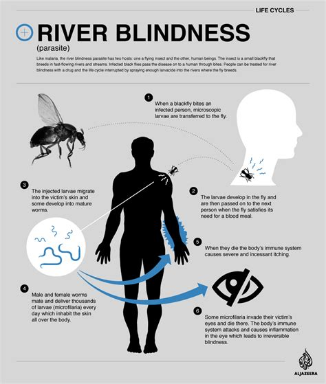 River Blindness Cycle cycle river blindness africa al jazeera