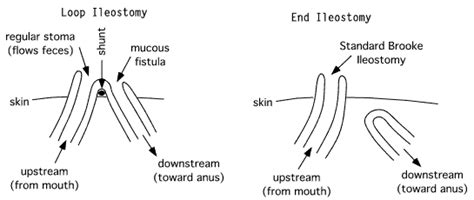 ileostomy diagram gut less ileostomy