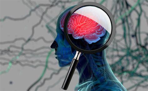 test per alzheimer alzheimer nuovi test per la popolazione a rischio ecco