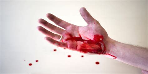 Heavy Bleeding In Stool by What Are The Symptoms Of Hemophilia Hemophilia