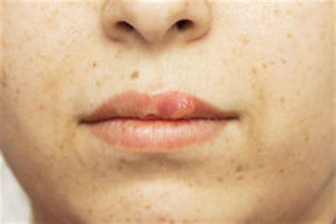 doccia con varicella malattia dell occhio erpetico ophthalmicus di herpes