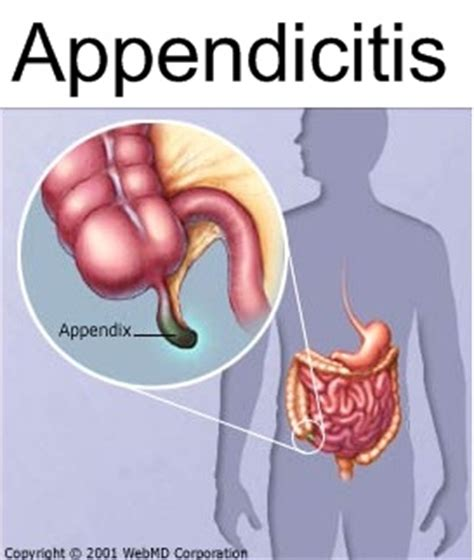how to test for appendicitis at home 28 images
