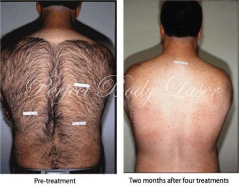brazilian laser hair removal male on li ny 50 best images about laser hair removal on pinterest