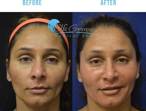 sacramento tattoo removal 28 laser removal sacramento 13 laser removal
