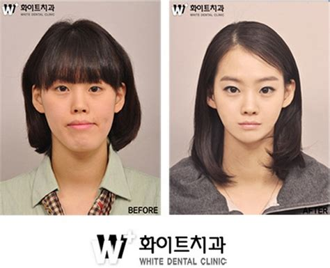 Korean Plastic Surgery Meme - plastic surgery in singapore info 10 inspirational