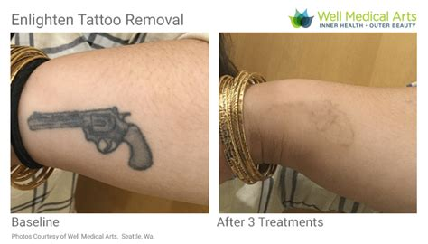 tattoo removal geelong 100 body beautiful tattoo removal laser hindsight