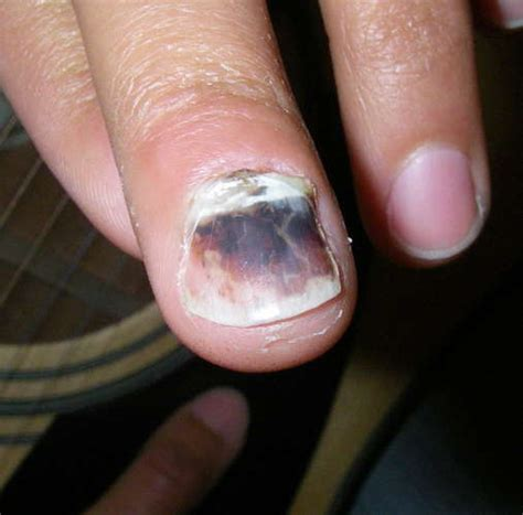 Baby Smashed Finger In Door by Crushed Finger Images Frompo 1