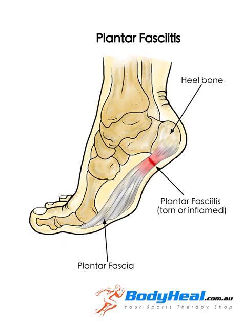 planters fasciitis symptoms what is plantar fasciitis causes symptoms treatment