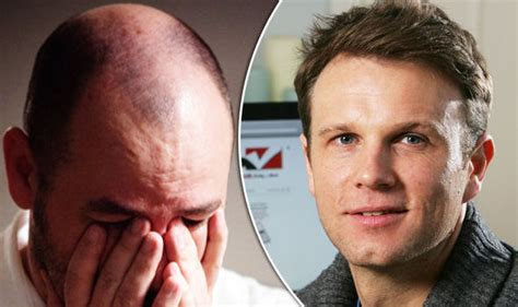 balding in my late 30 hair loss treatment cure from man who spent his savings