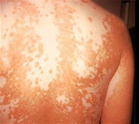 imagenes de manchas blancas en la espalda fotos del vit 237 ligo
