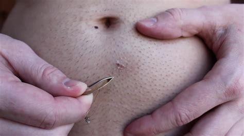ingrown hair on stomach longest ingrown hair removal below belly button youtube