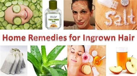 home remedies for ingrown hair home remedies archives