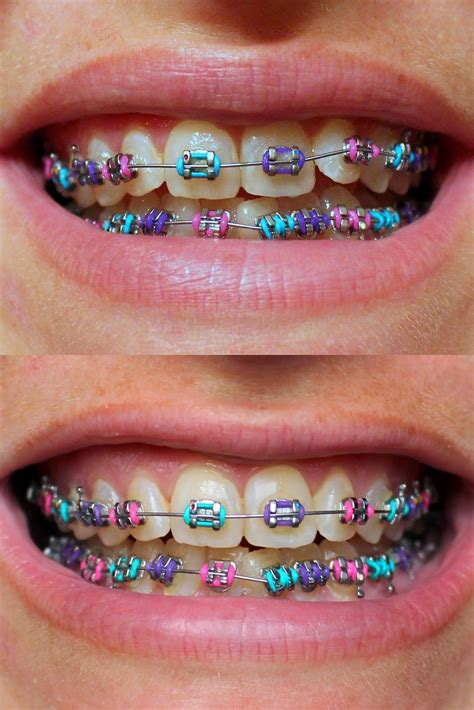 purple pink blue braces colors pink