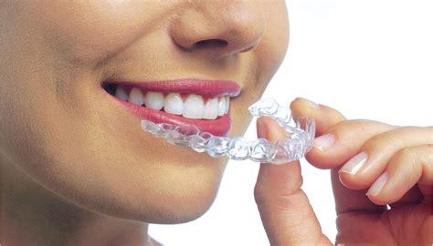 apparecchi dentali mobili ortodonzia 171 studio dentistico dott battaglia