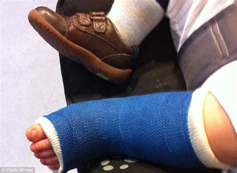 leg cast colors broken legs crushed skulls and why fears are growing