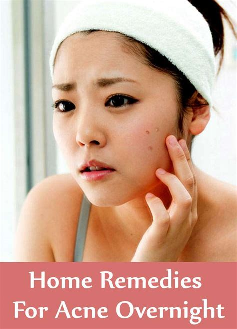 9 home remedies for acne overnight search home remedy